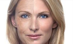 До и после применения мази