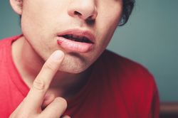 Вирус герпеса на губе