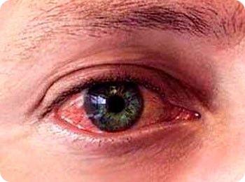 Лучшие мази от аллергии на глазах