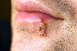 Рейтинг эффективных мазей от герпеса на губах