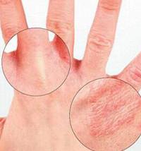 Выбираем мазь от аллергии на руках
