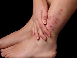 Раздражение на ногах