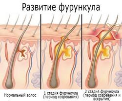 Этапы развития фурункула