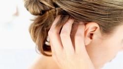 Микоз в зоне роста волос